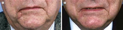 Scar Revision Review | JAMA Facial Plastic Surgery | The